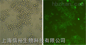 A172细胞;人脑胶质瘤细胞