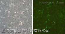TE-15 细胞;人食管癌细胞