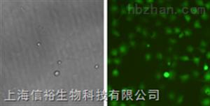Hs 852.T细胞;人黑色素瘤细胞