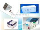 人IL-2 elisa试剂盒,IL-2检测